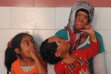 فرهنگ سازی برای اسید پاشی - دفتر وکالت آل محمد